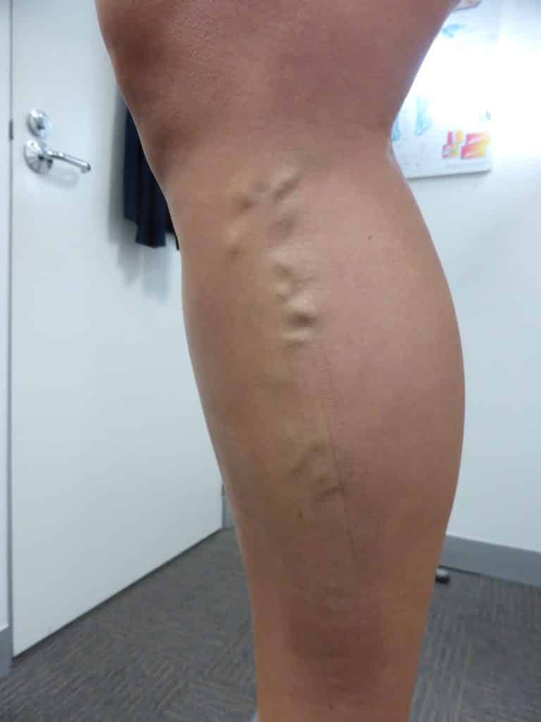 Truncal Varicose Vein: Treat Ultrasound Guided Radiofrequency