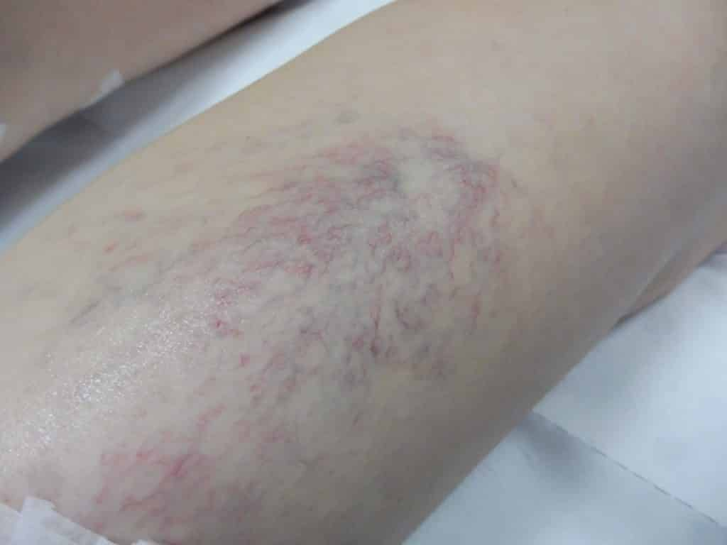 Venular Flare: Treated by Sclerotherapy